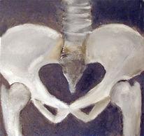 Knochen, Gelenk, Anatomie, Arthrose