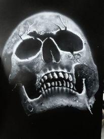Knochen, Bruch, Schädel, Struktur
