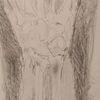 Fraktur, Handgelenk, Röntgen, Zeichnungen