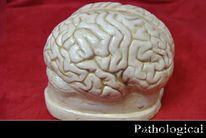 Gehirn, Skulptur, Angst, Diseased