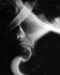 Röntgen, Bones1, Bones, Xray